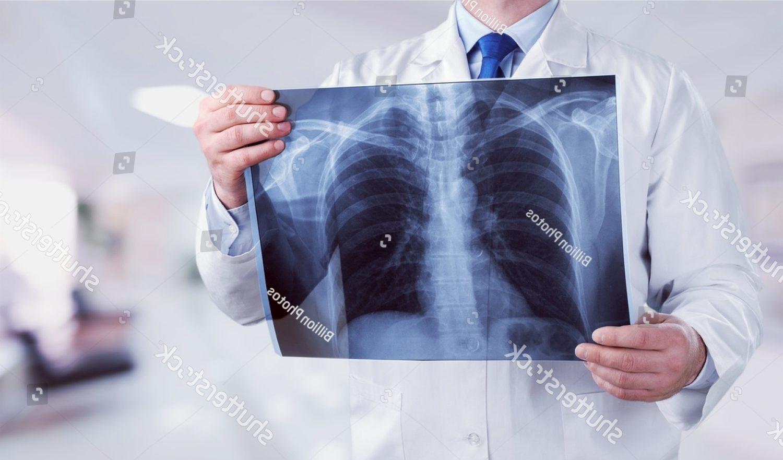 Mellkas röntgen vizsgálat